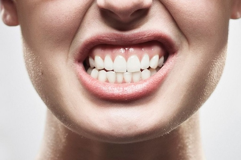 https://www.studiodentisticopais.it/wp-content/uploads/2021/05/malocclusione-dentale-alghero.jpg